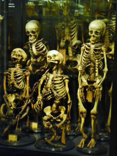 5_Skeletons at Museum Vrolik